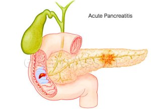 do-i-have-acute-pancreatitis