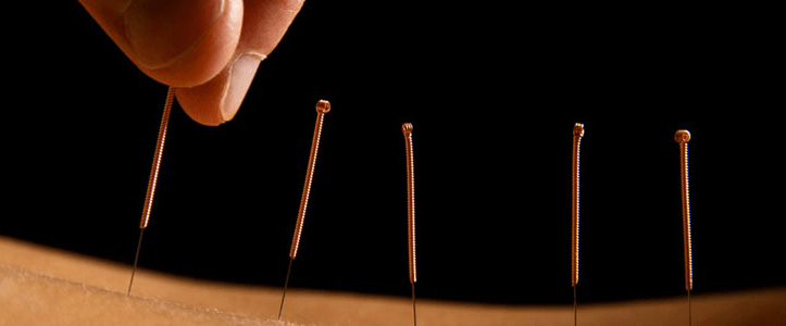 The Healing Effects of Acupuncture