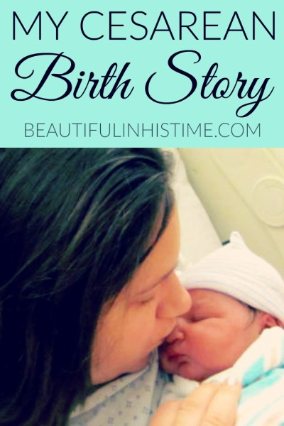 my cesarean birth story