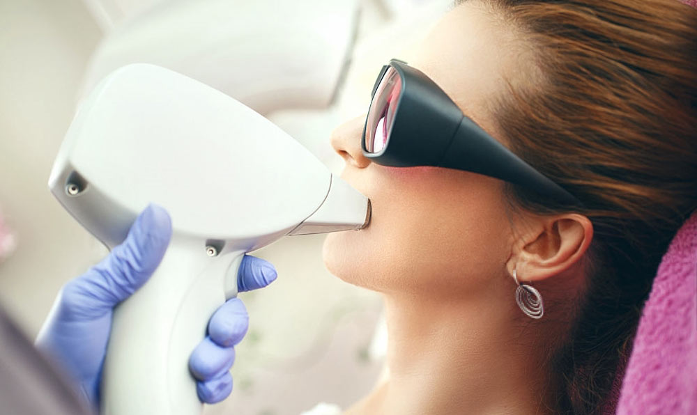 Face laser hair removal
