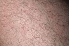 skin-192794__480