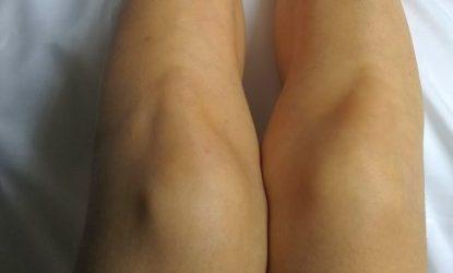 足の毛穴 消す