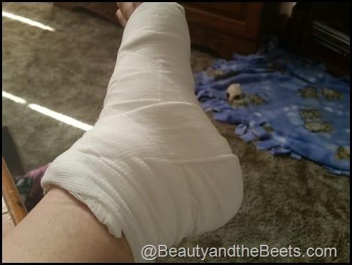 Soft Cast Surgery