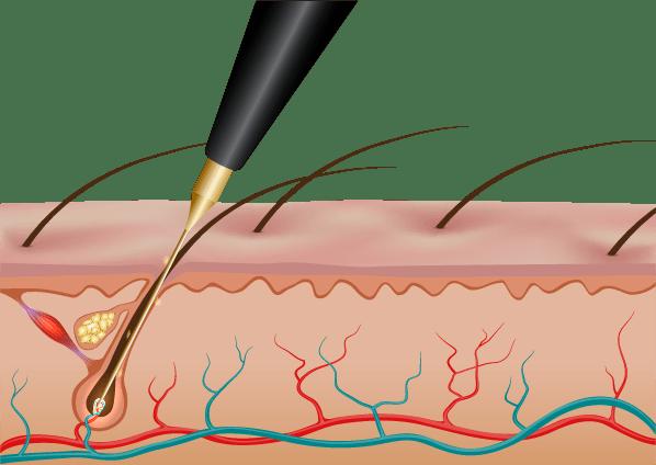 Electrolysis – Beauty Bar By Akhlas
