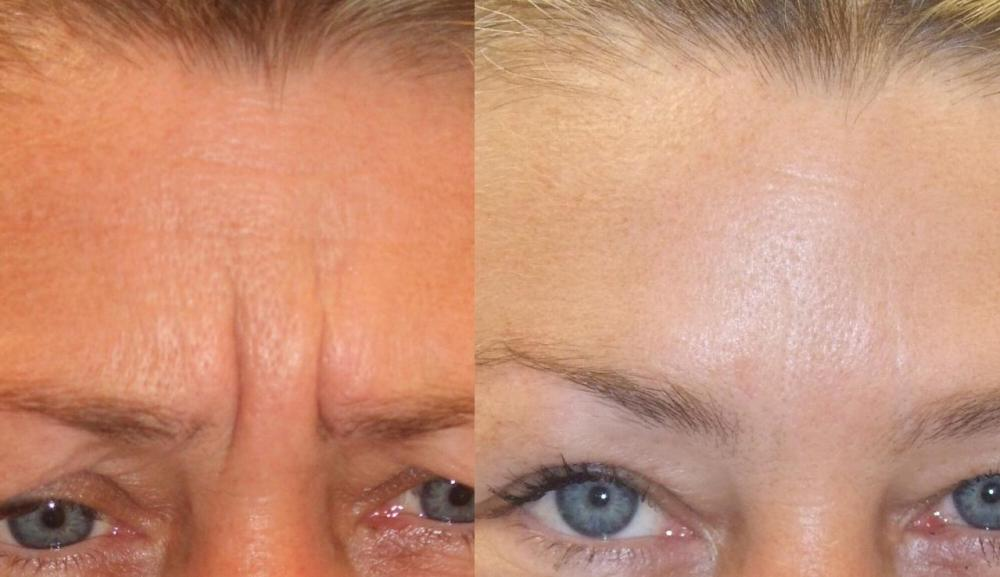 Botox- How it Works-The Risks and Benefits - frown lines before and after