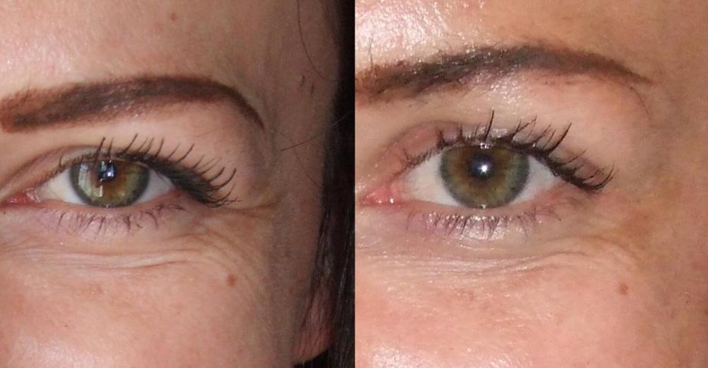 Botox- How it Works-The Risks and Benefits - crows feet before and after