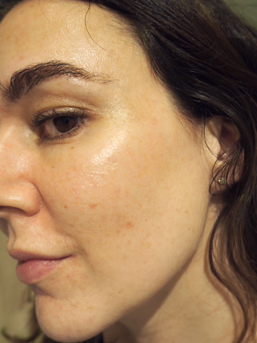 Acne/Aging/Pigmentation Skincare Routine- Just After Discovering The Ordinary- close up nice clear skin