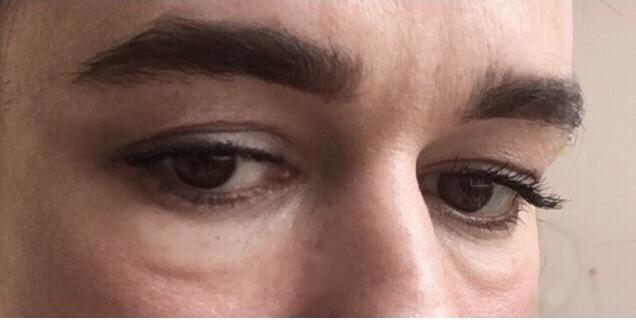 Puffy Eye Remedies- Close up of eye bags