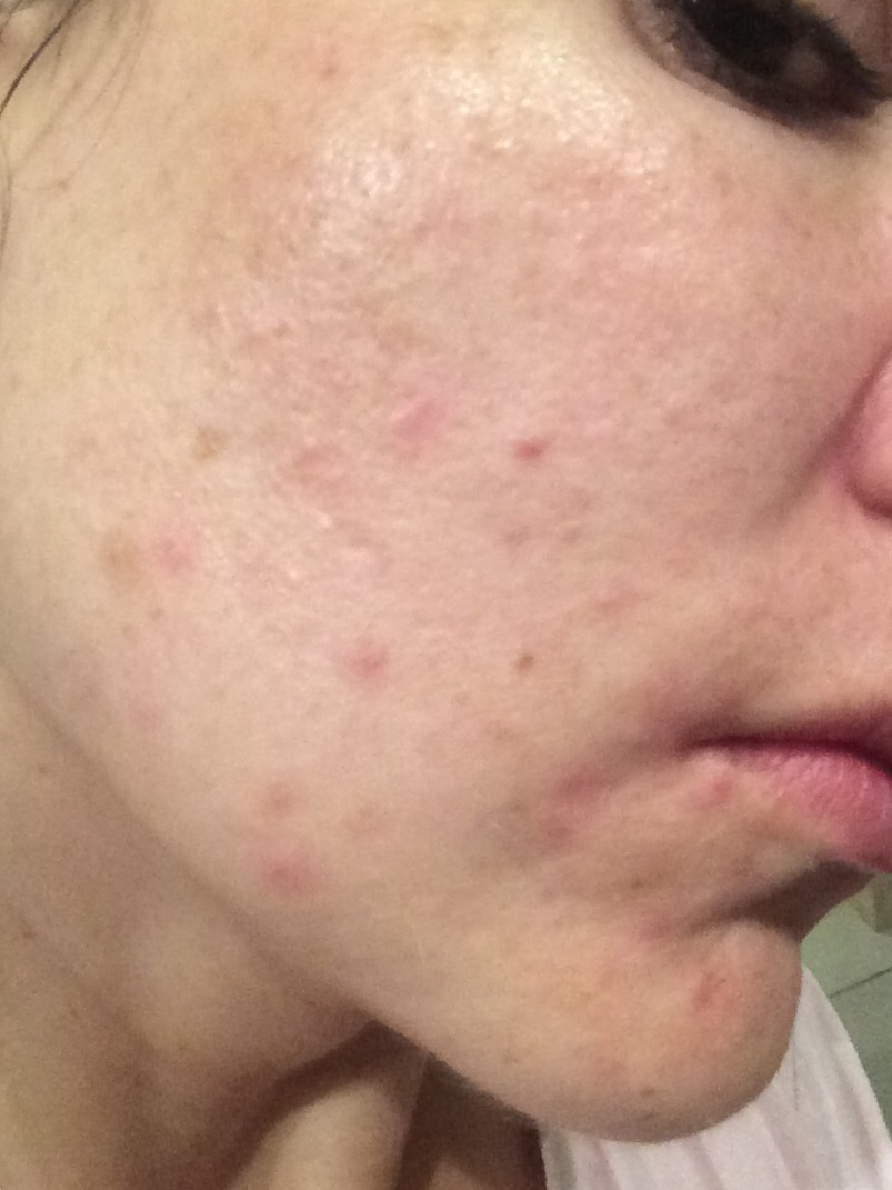 The Ordinary Skincare Regime For Acne- before photo close up