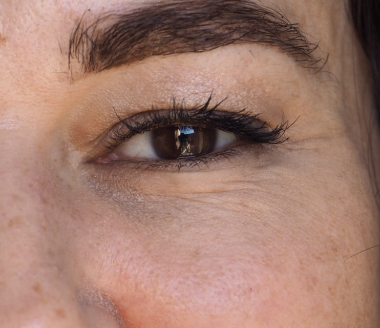 Yana Daily Collagen Shots by Image Skincare- Left Eye Before