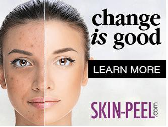 skinp-change