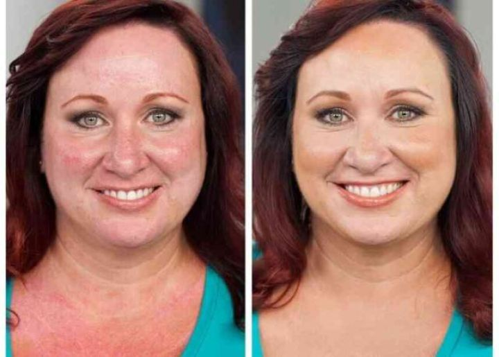 Colorescience make over women rosacea couperose fair skin