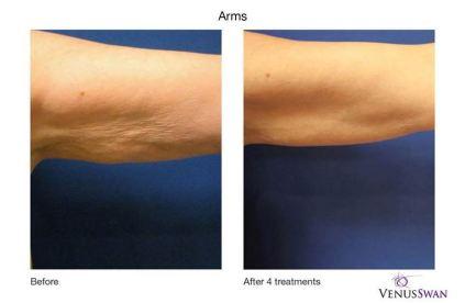 venusswan-skin-tightening
