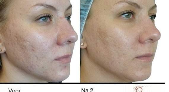 Pigmentatie, rosacea en acne littekens corrigeren met Venus Viva 11 acne littekens Pigmentatie, rosacea en acne littekens corrigeren met Venus Viva Venus Concept
