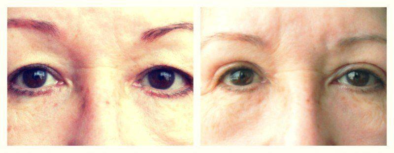 Mijn ooglidcorrectie- En hoe ziet het na 3 jaar eruit? 8 ooglidcorrectie Mijn ooglidcorrectie- En hoe ziet het na 3 jaar eruit?