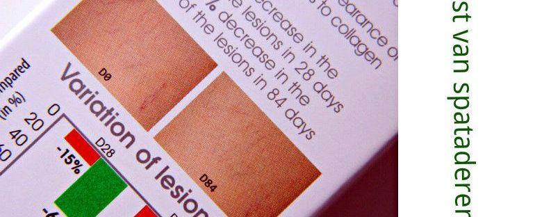biomed vein away achterkant doos spataderen