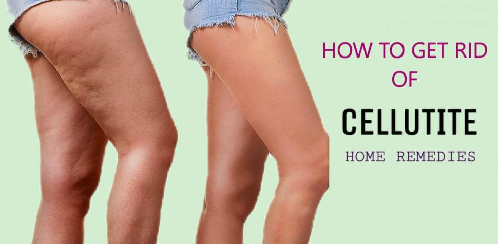 how to get rid of cellulite,get rid of cellulite,how to get rid of cellulite naturally,how to get rid of cellulite on thighs,how to get rid of cellulite fast,how to get rid of cellulite on legs,get rid of cellulite fast,get rid of cellulite naturally,how to reduce cellulite,how to remove cellulite,cellulite,how to get rid of cellulite on stomach