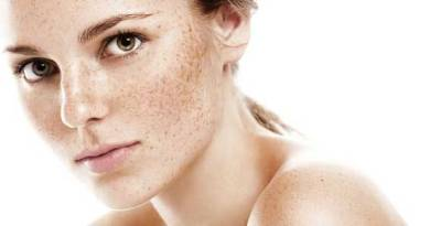 Fight freckles in natural ways