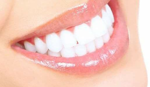 Kosmetische Zahnaufhellung