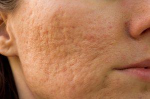Aknenarben unbehandelte Akne