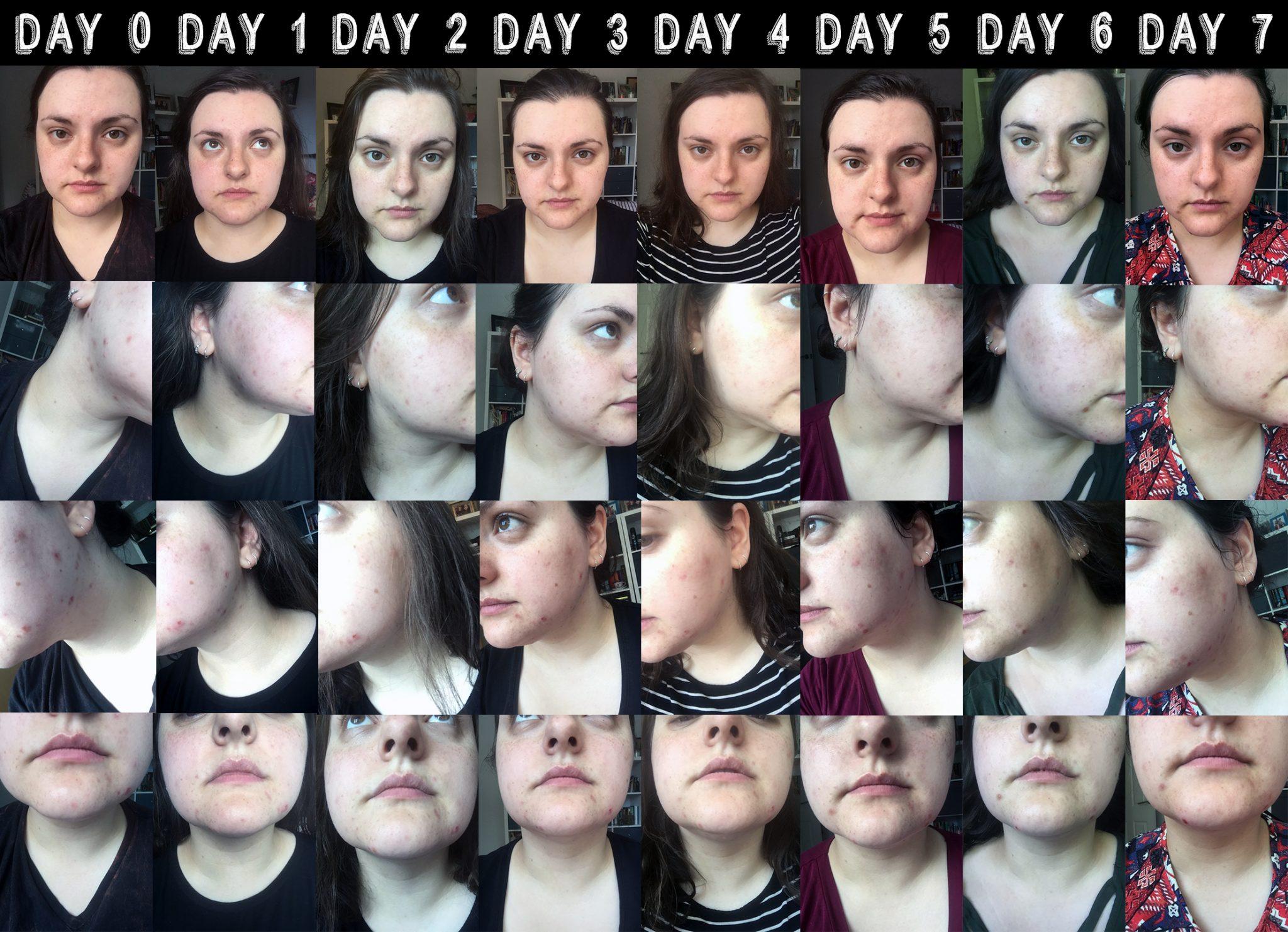 Week one - 7 days of Liz Earle skincare vs problem skin