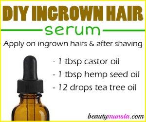 DIY Ingrown Hair Serum Recipe