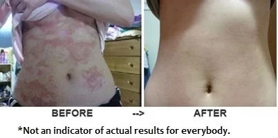 Before and After Effects for Revitol Dermasis