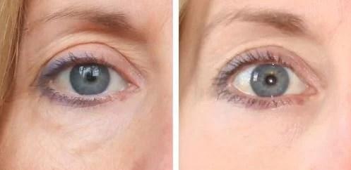 Revitol Eye Cream The Best Eye Care Cream Revitol Beauty