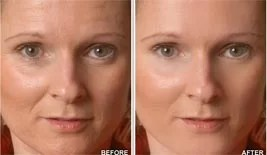 Dermology Anti Aging: Before & After Image