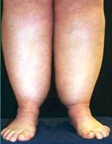 lipedema-fat-legs