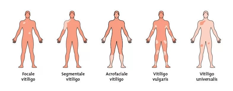 Types of Vitiligo