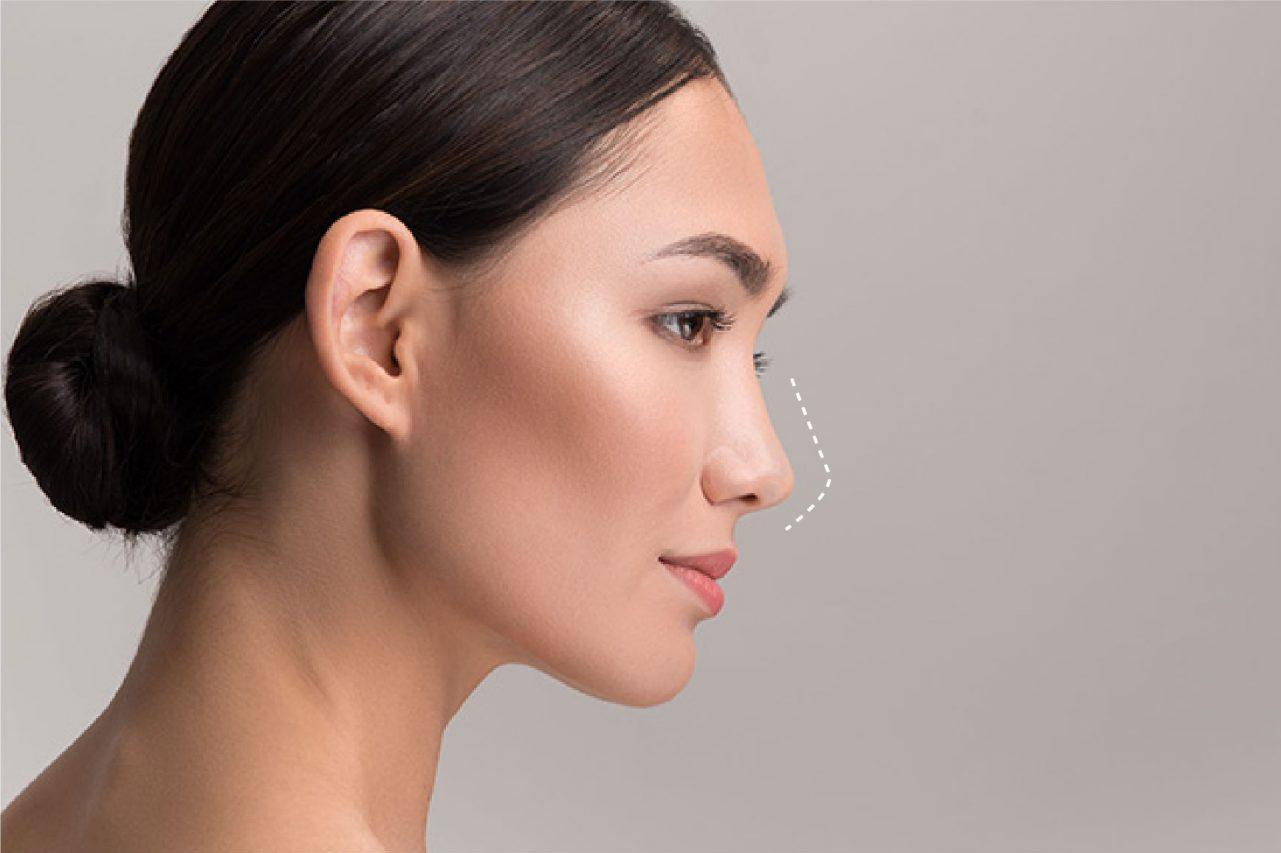 Filler Hidung