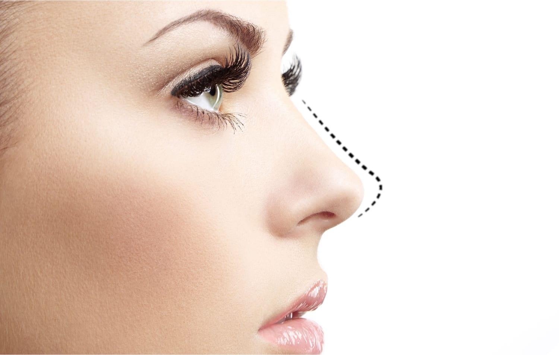 Botox Cuping Hidung