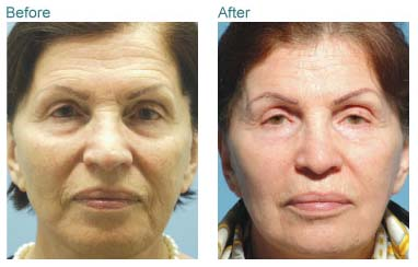 anti aging treatment result