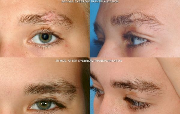 Eyebrow hair transplant