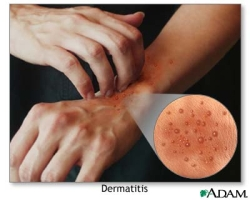 new psoriasis healing synthetic lipids developed