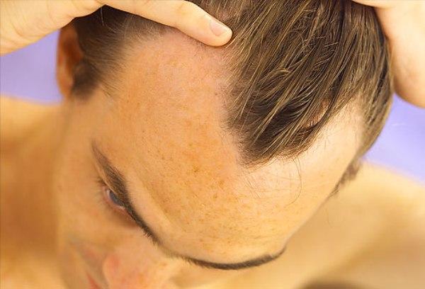 Спреј против губитка косе