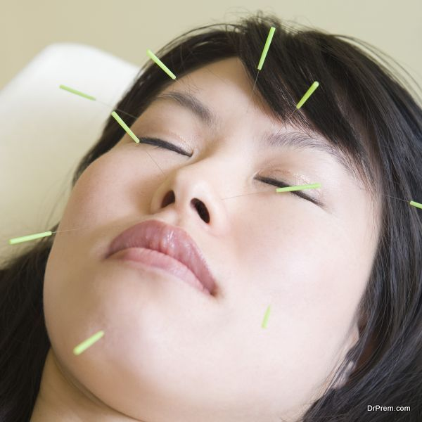 cosmetic-acupuncture-1