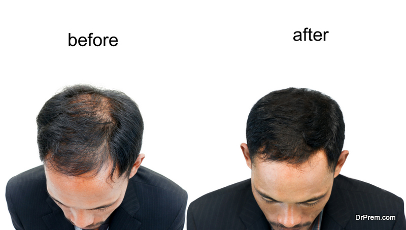 Hair-Restoration