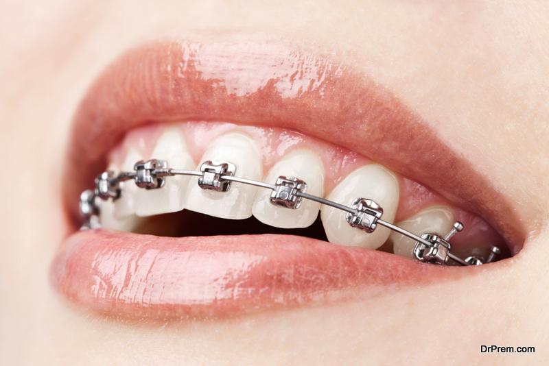 Fixed metal braces