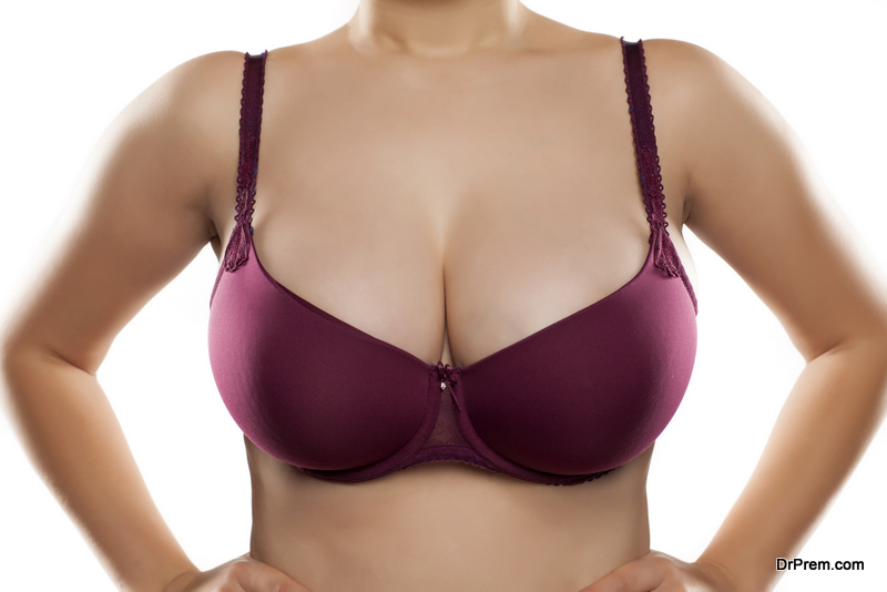 breast asymmetry corrected with an augmentation