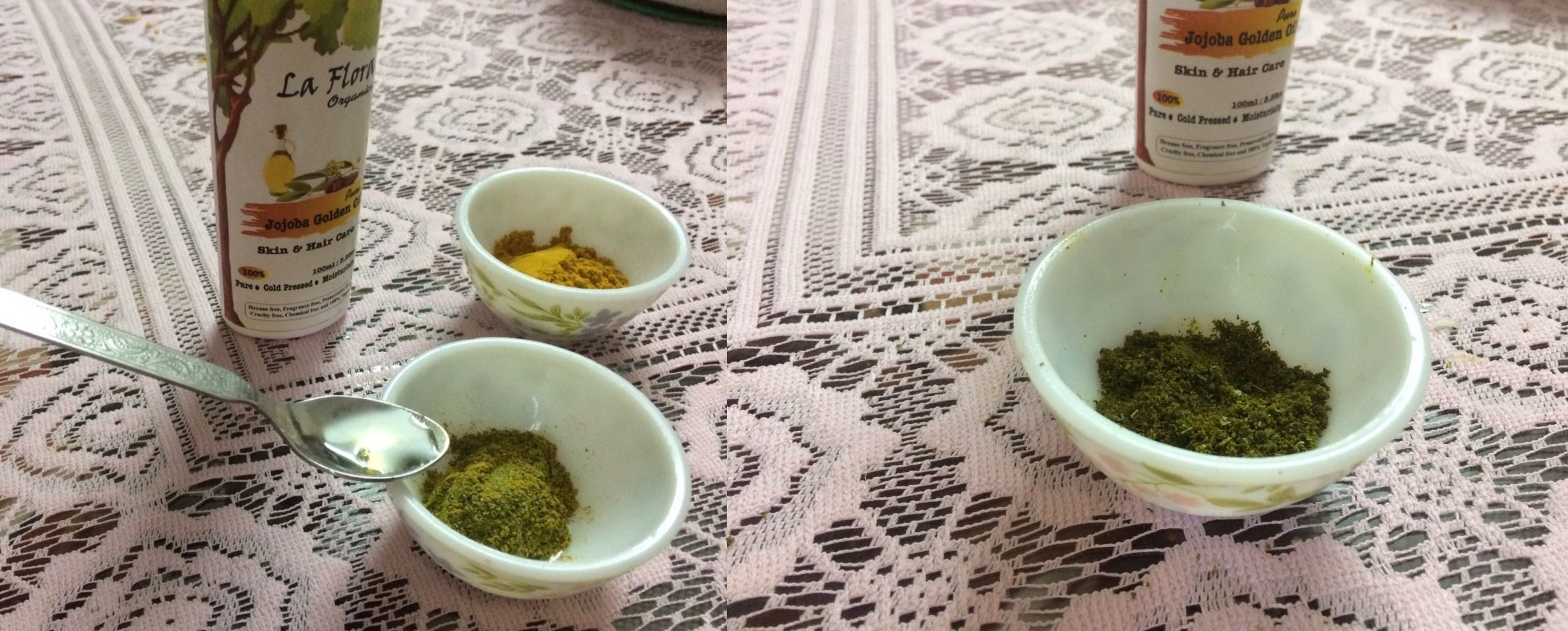 Curry leaves with turmeric and jojoba oil for preparing herbal mix to treat acne