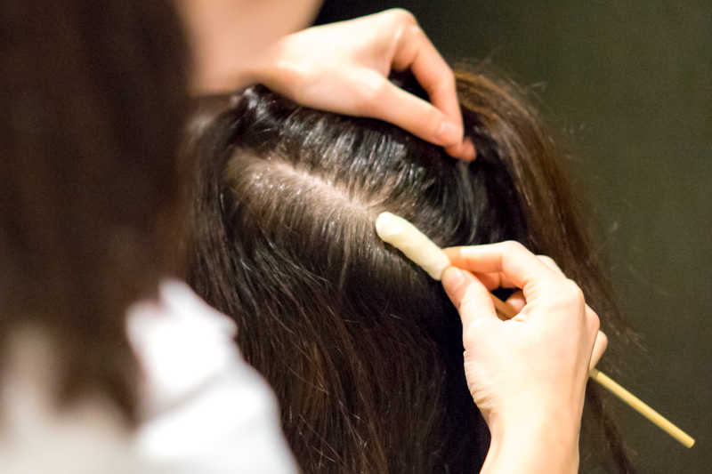 This Korean Scalp Treatment Uses Stem Cells To Encourage Hair Regrowth