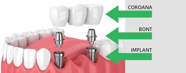 https://www.drnassar.ro/implanturi-dentare/
