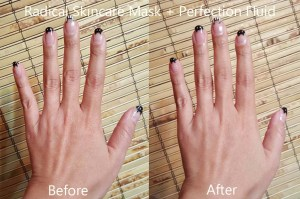 Radical Hands Before and After
