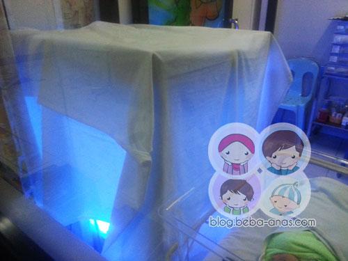 jaundice -bawah lampu UV