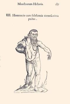 Indian gentleman with Neurofibromatoses 1, page 587, Aldrovandi's Monstrorum historia, 1642. BBML
