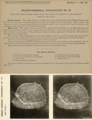 "Stereograph from the ""Stereoscopic Studies of Anatomy"""