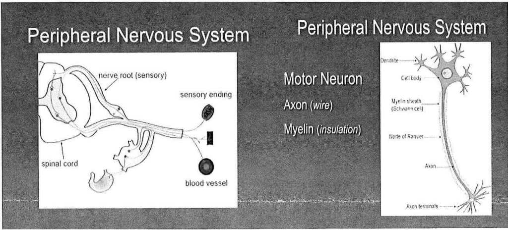 Neuropathy diagram