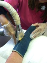 cutting off the cast